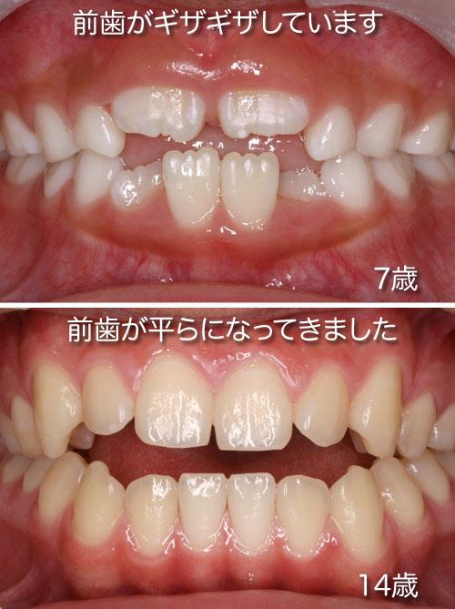 の 歯 大人