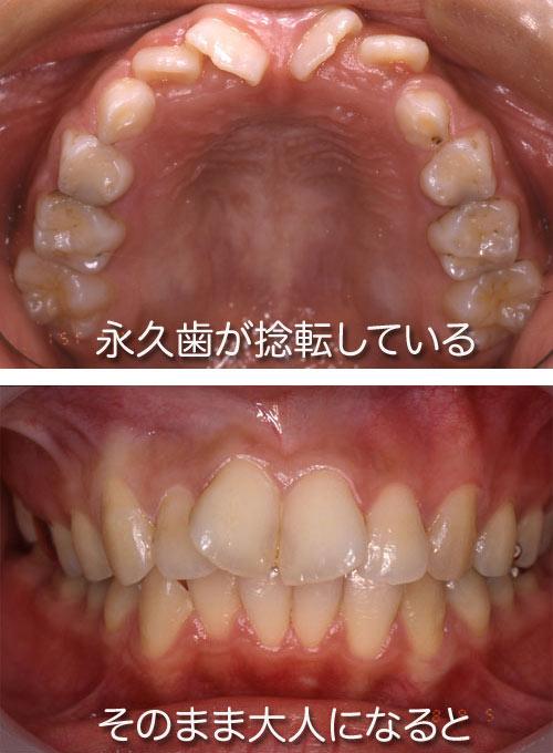 出てきたばかりの上の永久歯の前歯には隙間があったり、ハの字に傾... お母さんの歯並び教室