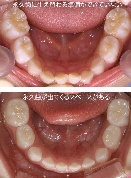 方 乳歯 抜き