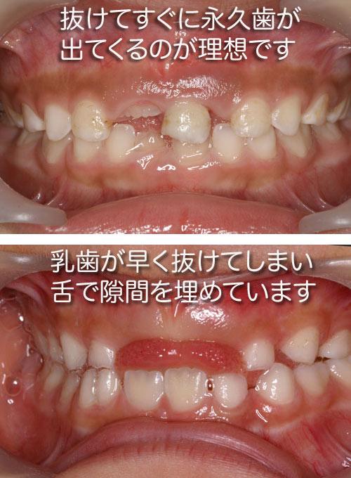 抜け ない の 歯 子供 子供の乳歯が抜けない、生え変わらない5つの理由と対応策